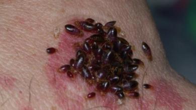 Photo of علاج لدغة بق الفراش