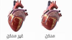 قلب مدخن
