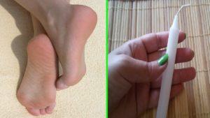 علاج تشقق القدمين بالشمع