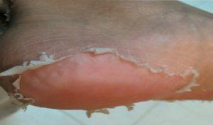 اسباب تقشر جلد القدمين