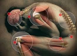 Photo of اعراض الترامادول الجانبية