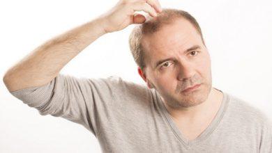 Photo of علاج لتساقط الشعر