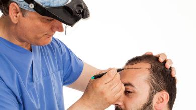 Photo of افضل دكتور لزراعة الشعر في تركيا