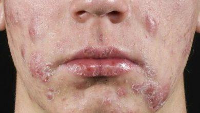 Photo of مرض بكتيريا الوجه